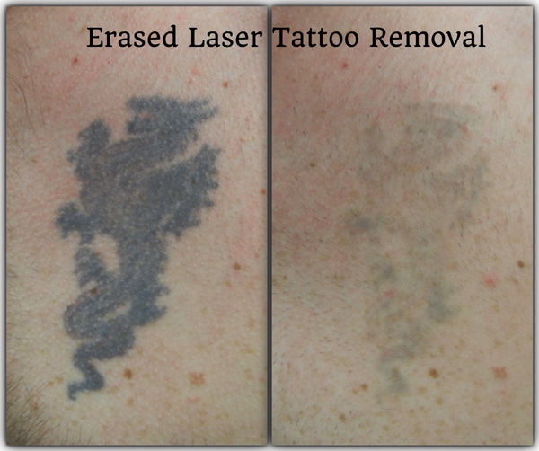 Before Amp After Erased Laser Tattoo Removal