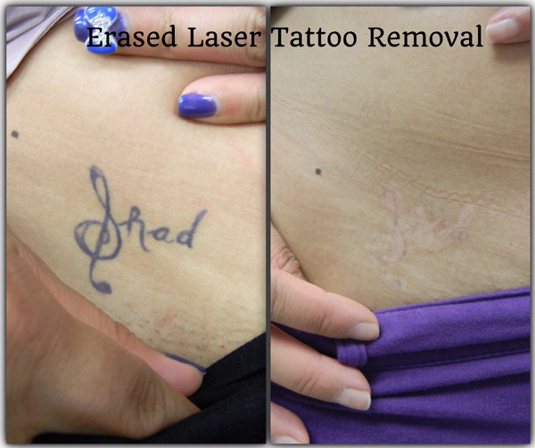 100 considering laser tattoo removal ahb picosure for Tattoo removal 2017